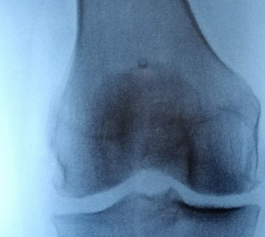 Radiographie arthrose genou